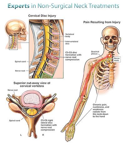 nyak és vállfájdalom kezelése